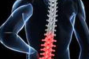 脊椎側湾症