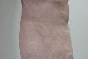 下肢静脈瘤血管内治療症例 202