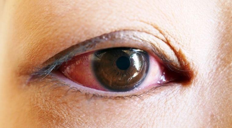 【ヤバい】目が痒い人いる?それ新型コロナに感染してるかもよ…初期症状に「結膜炎」があります