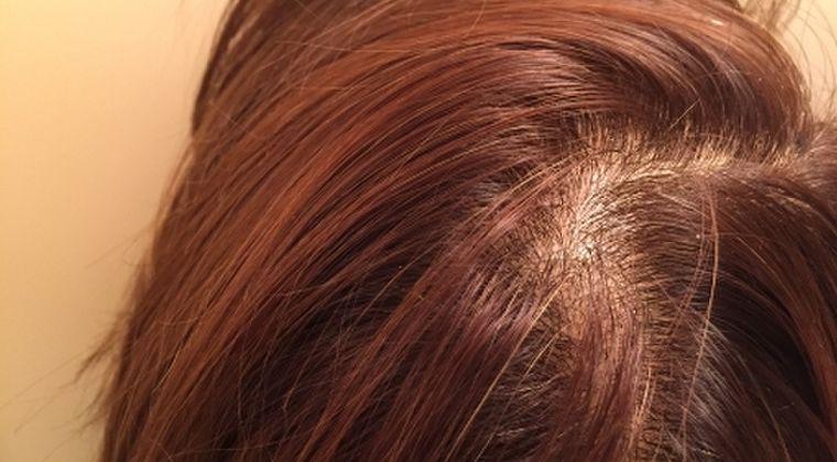 【ハゲ】新型コロナの後遺症か?その後「抜け毛」に悩まされる女性が続出中!