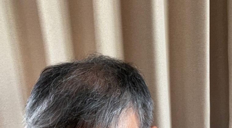 【ハゲ注意】新型コロナで重症化しやすい人は「血液型A型で薄毛の男性」