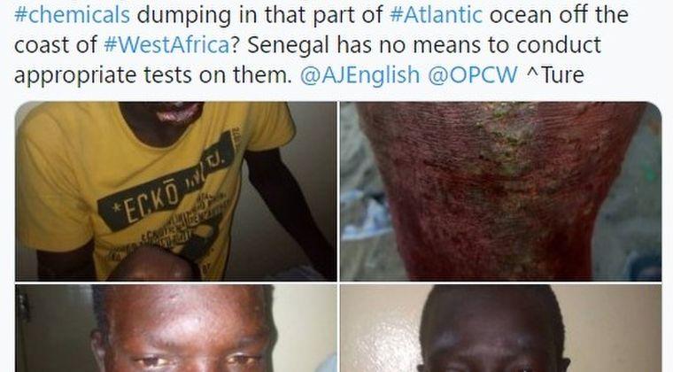 【閲覧注意】セネガルの漁師300人以上が「謎の皮膚疾患」を発症…顔や四肢に症状、原因不明