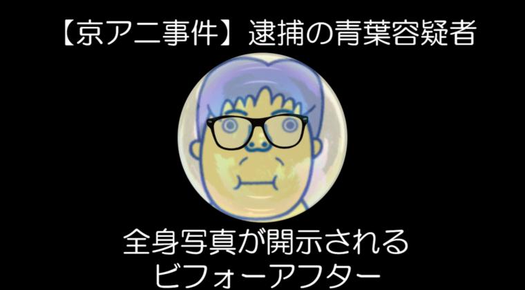 青葉容疑者、逮捕の全身写真が開示される ビフォーアフター【京アニ事件】