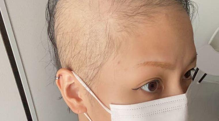 モデルナコロナワクチンの副反応!?接種後に脱毛した28歳女性ハゲ画像が拡散